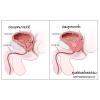 ต่อมลูกหมากโต (Benign Prostatic Hyperplasia – BPH) คืออะไร