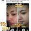 Khun Ying Ginseng facial skin ครีมคุณหญิงหน้าใส by โสมคุณหญิง คุณค่าพลังสกัดจากโสม ผิวหน้ากระจ่างใสใน 7 วัน thumbnail 28