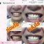 dazzling WHITE INSTANT WHITENING PEN เจลปากกาฟอกฟันขาว จบปัญหาฟันเหลือง ในแท่งเดียว thumbnail 20