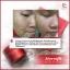 PCARE RED Finest Care พีแคร์ เรด ไฟเนสท์ แคร์ นวัตกรรมสูตรเพิ่มพลังผิว ลดฝ้า กระ หน้าขาวใส thumbnail 20