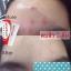EVE'S Anti-Acne Massaging Cream อีฟส์ แอนตี้ แอคเน่ มาซซาจจิ้ง ครีม ครีมตบสิว ปัญหาสิว ไม่ใช่เรื่องใหญ่อีกต่อไป thumbnail 8