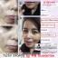 X'BEiNO MICRO FACE SERUM เอ็กซ์'บิไอโน่ เมโสหน้าใส ของแท้ อย.ไทย by MB GUARANTEE thumbnail 17