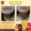 ROSE BUEING PACEN vit's by SKINISTA โรเซ่ บูอิ้ง วิตามินแบบเคี้ยว thumbnail 29