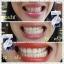 dazzling WHITE INSTANT WHITENING PEN เจลปากกาฟอกฟันขาว จบปัญหาฟันเหลือง ในแท่งเดียว thumbnail 22