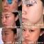 NATZILLA Deep Cleansing Facial Brush แนทซิลล่า แปรงทำความสะอาดผิวหน้าอย่างล้ำลึก แต่งหน้าได้ แต่ไม่เป็นสิว นวัตกรรมในการล้างหน้าแบบใหม่ thumbnail 18