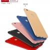 (694-028)เคสมือถือ Huawei P10 Lite เคสนิ่มแฟชั่นสีสันสดใสสไตส์เรียบหรู