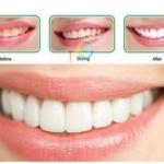 ชุดฟอกฟันขาว สำเร็จรูป opalescence go!