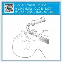 11.06 เครื่องส่องหลอดลม (Laryngoscope)