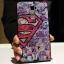 (440-105)เคสมือถือ Case OPPO R7 Plus เคสขอบสีพลาสติกนิ่ม+ฝาหลังนิ่มลายน่ารักๆ thumbnail 24